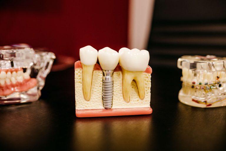 Ile kosztują implanty stomatologiczne?